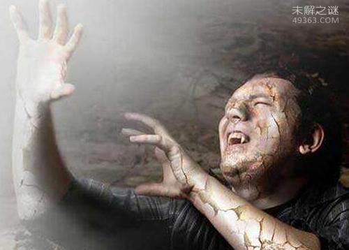 吸血鬼病症的原型竟是卟啉(bǔ lín)病,为什么要喝血呢!