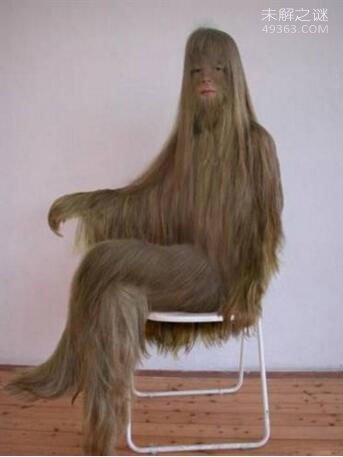 艾米丽・苏珊:世界上体毛最长的女人(脱毛后是个大美女)