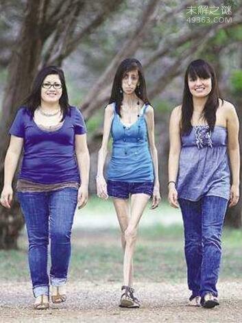 美国零脂肪女孩体重仅只有27公斤(骷髅女孩)