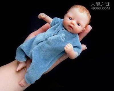 世界上最小的婴儿阿米利娅・泰勒:出生仅280克(今年14岁)