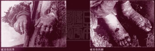 恐怖!日本731部队人体试验照片