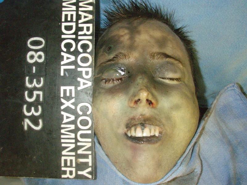 国外男人尸检照片