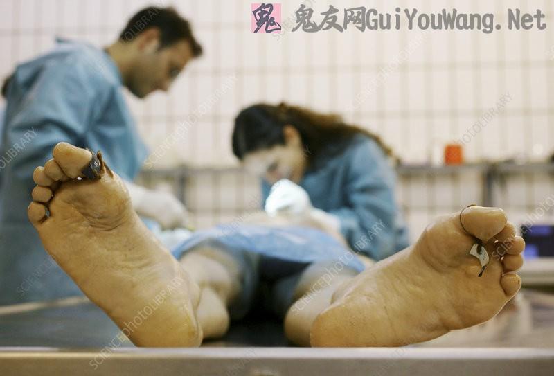 医学解剖女尸体