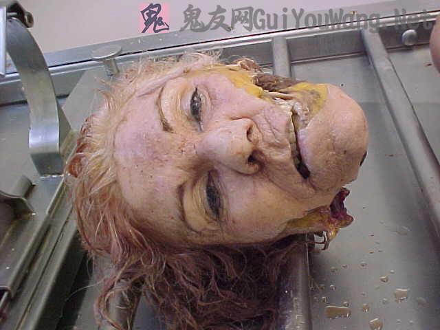 国外医学照片--一套经过处理过得女尸碎尸